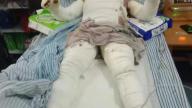 吉安泰和一男子遭煤气爆炸烧伤 治疗费愁坏一家人