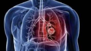 江西:对所有新型冠状病毒感染肺炎确诊患者实行免费救治