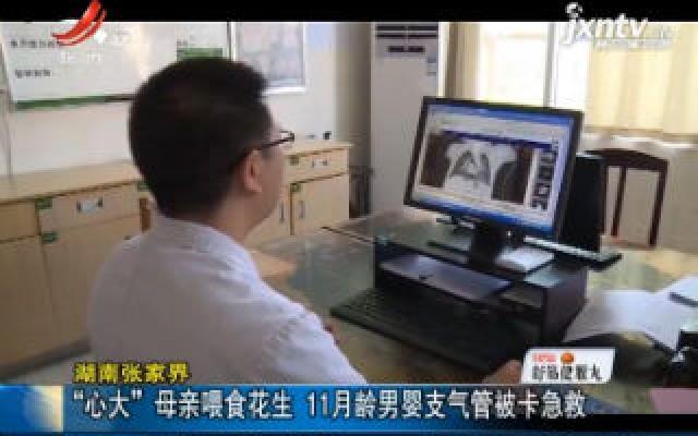 """湖南张家界:""""心大""""母亲喂食花生 11月龄男婴支气管被卡急救"""