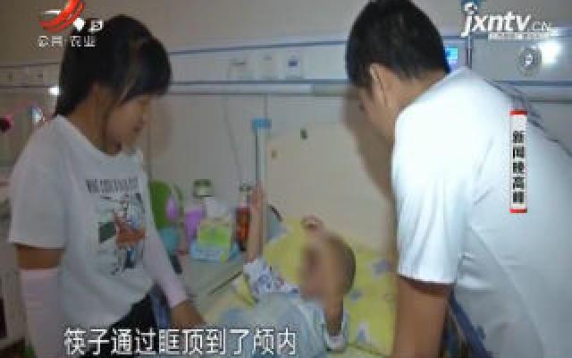 南京:2岁女孩吃饭时玩闹 筷子从右眼直戳入颅内