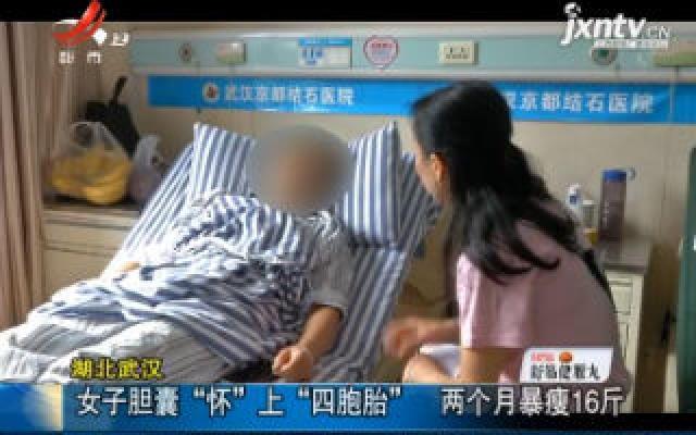 """湖北武汉:女子胆囊""""怀""""上""""四胞胎"""" 两个月暴瘦16斤"""