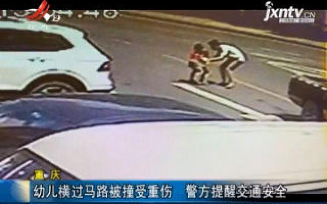 重庆:幼儿横过马路被撞受重伤 警方提醒交通安全