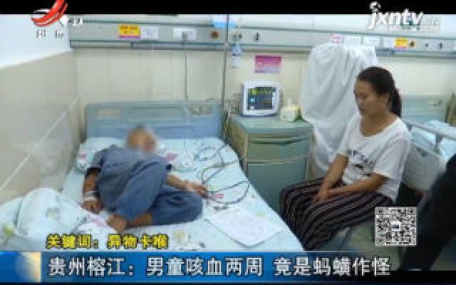 【关键词:异物卡喉】贵州榕江:男童咳血两周 竟是蚂蝗作怪