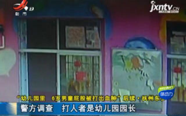 """""""幼儿园里 6岁男童屁股被打出血肿""""后续·抚州东乡:警方调查 打人者是幼儿园园长"""
