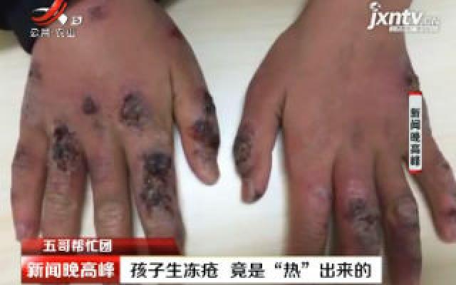 """【五哥帮忙团】武汉:孩子生冻疮 竟是""""热""""出来的"""