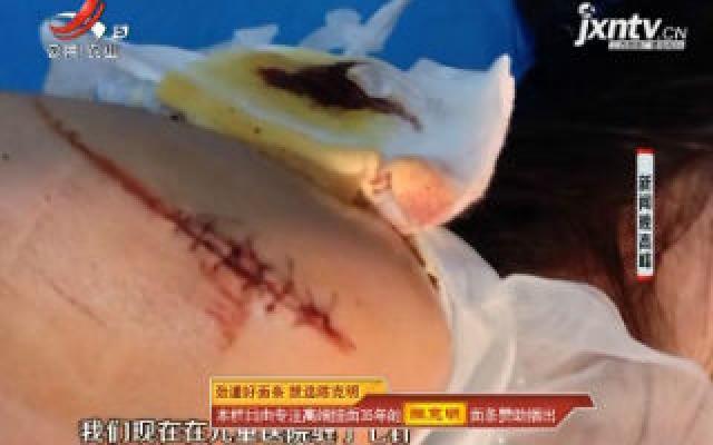 南昌: 停车场起落杆划伤小孩 谁该负责引争议
