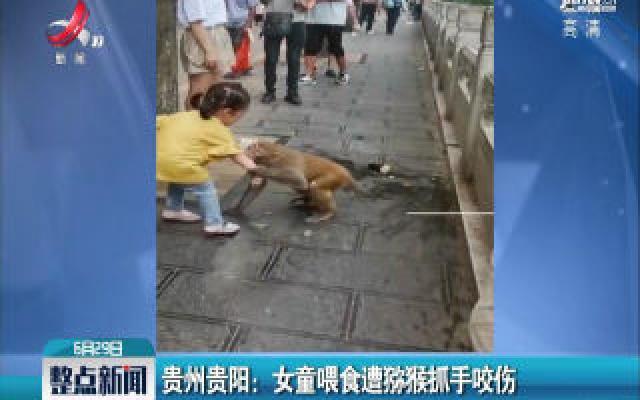 贵州贵阳:女童喂食遭猕猴抓手咬伤