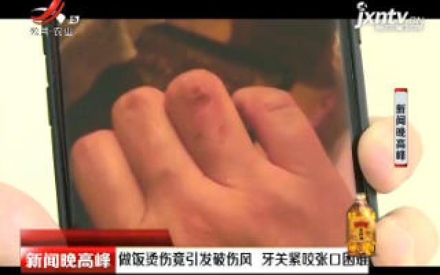 北京:做饭烫伤竟引发破伤风 牙关紧咬张口困难