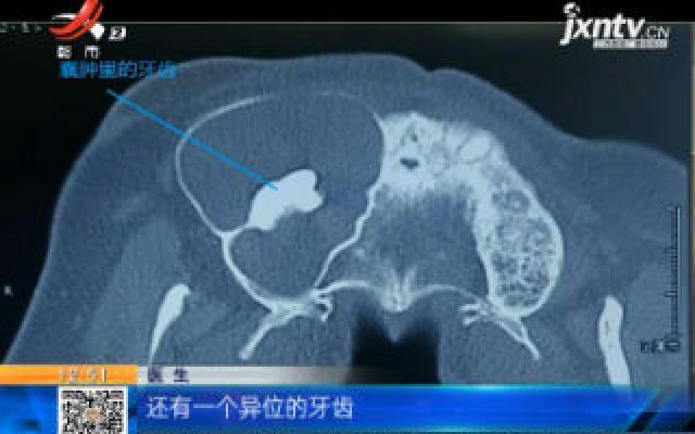 陕西西安:男子面部肿痛难忍 竟是鼻窦里长牙惹的祸